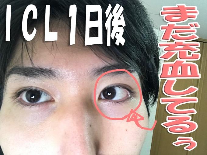 ICL1日後の眼