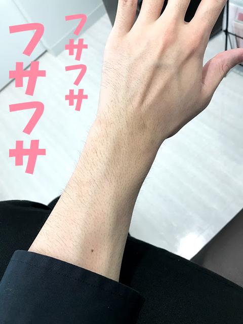 脱毛前の腕毛2