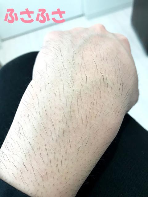 脱毛前の腕毛3