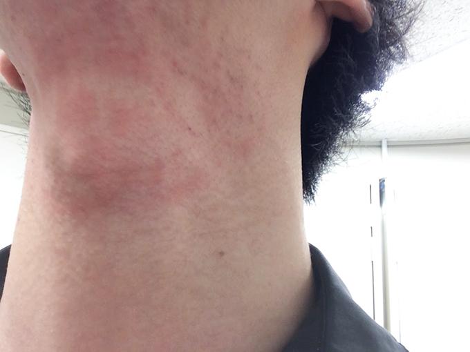 ヒゲ脱毛照射後の首アップ