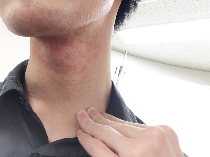 ヒゲ脱毛照射後の首